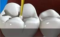 补牙过程模拟图