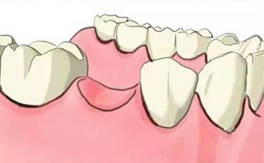 牙齿缺失补牙