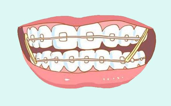 南京儿童箍牙多少钱