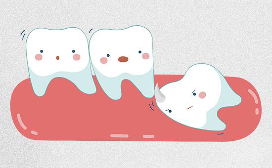 上海拔智齿多少钱