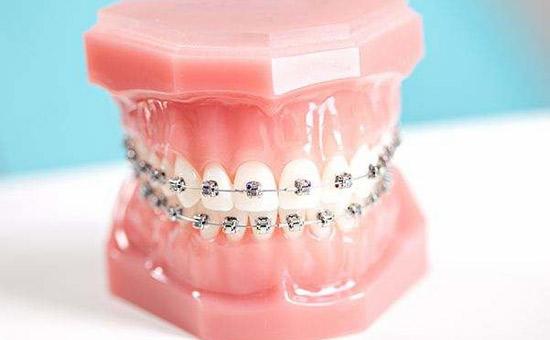 昆山牙齿矫正费用