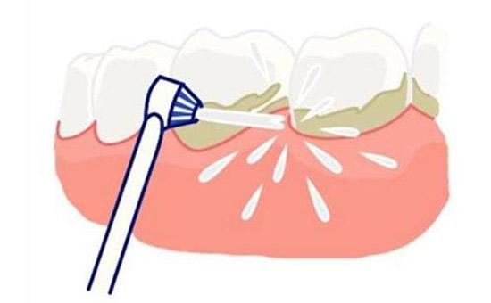 常熟超声波洗牙多少钱