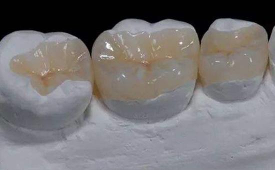 南京补牙医院排名秦淮区