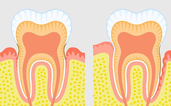 南京热门提问:牙龈出血、肿痛怎么办?