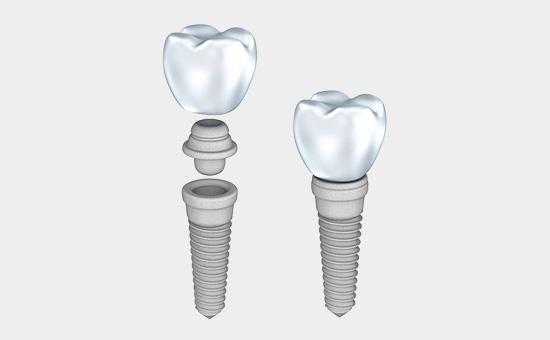 门牙缺失种牙还是镶牙