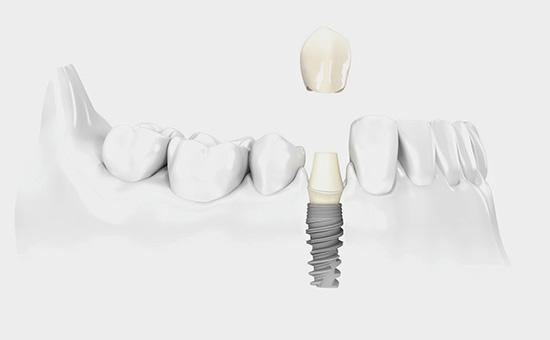 关于种植牙疑问解答
