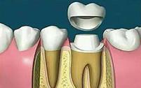 根管治疗后套牙冠