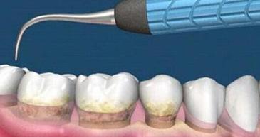 医保洗牙更实惠