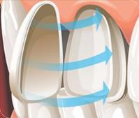 牙齿缺损修复