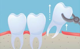 微创微痛拔牙技术
