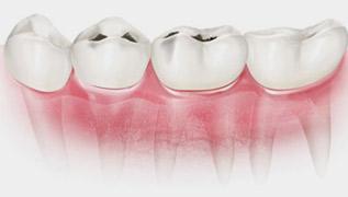 蛀牙/龋齿