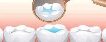 牙博士口腔舒适补牙