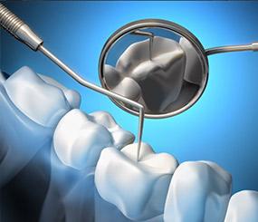 专业医生补牙可靠