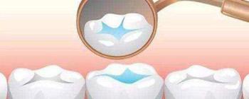 正规补牙效果明显