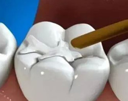 3M纳米树脂补牙