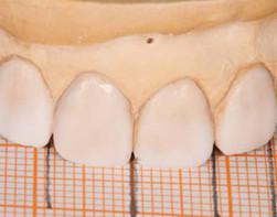 牙博士美学修复