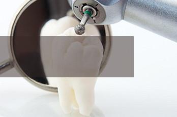 树脂补牙  安全有效
