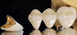 牙冠材料的不同