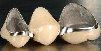 生物合金烤瓷牙