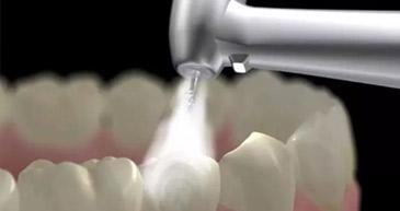 牙博士洗牙物超所值
