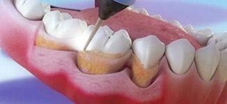 不同的洗牙技术