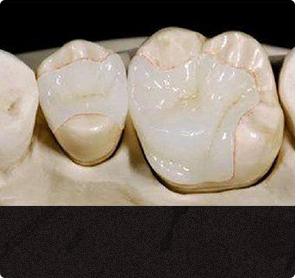 牙博士纳米树脂补牙