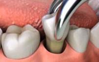 拔牙过程模拟
