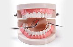 看牙齿情况