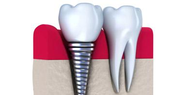 牙齿种植类价格咨询