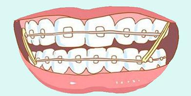牙齿矫正类价格咨询