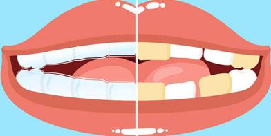 牙齿美白类价格咨询