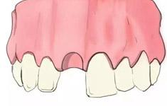 不同的牙齿情况