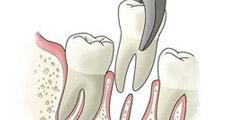 拔牙技术要先进