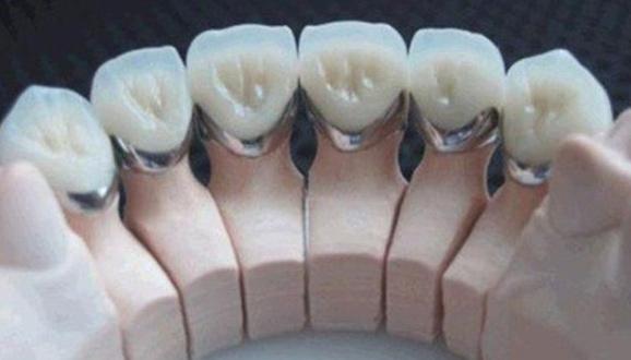 非贵金属烤瓷牙