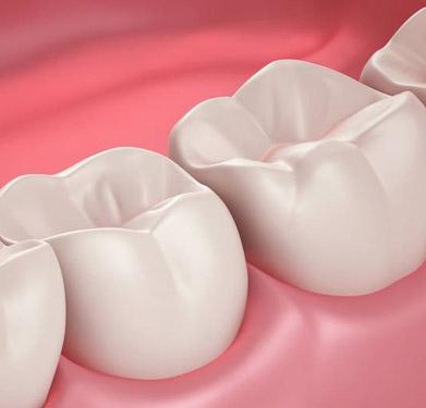 美国3M纳米树脂补牙