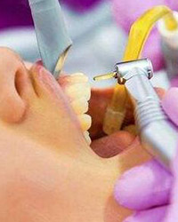 720°深层洁牙护理