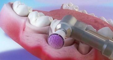 进步前辈洗牙手艺  洗牙更清洁