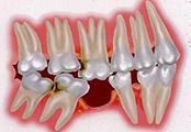 牙齿发生位移