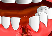 拔牙伤口感染
