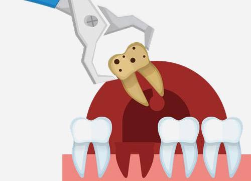 相城牙博士拔牙