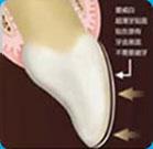 牙博士超薄牙贴面备牙方案