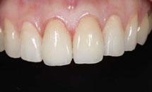 牙博士超薄牙贴面备牙后方案