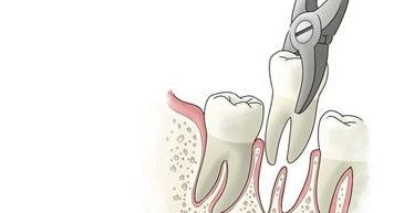 牙博士种牙
