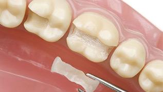 牙齿缺损程度