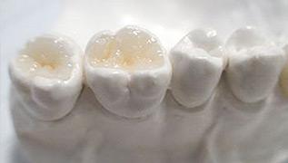 补牙材料不同