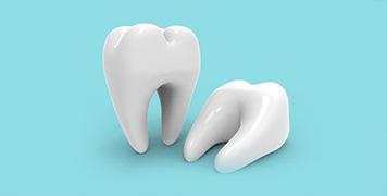 拔牙术后有效清爽