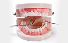 补牙设备先进可靠